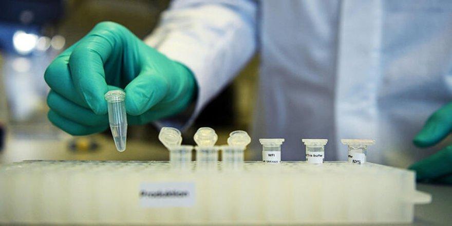 Virusê Korona: Hûmara qûrbanan resa 34 hezarî