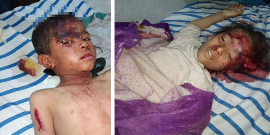 Minbic: Bombardûmnanê Tirkîya de 6 sîvîlî ameyî kiştene